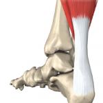 Infiltration du tendon d'Achille